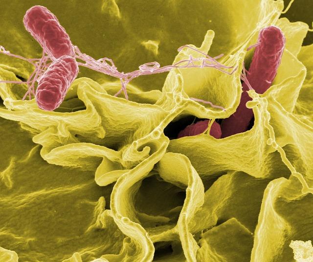 細菌性膣炎